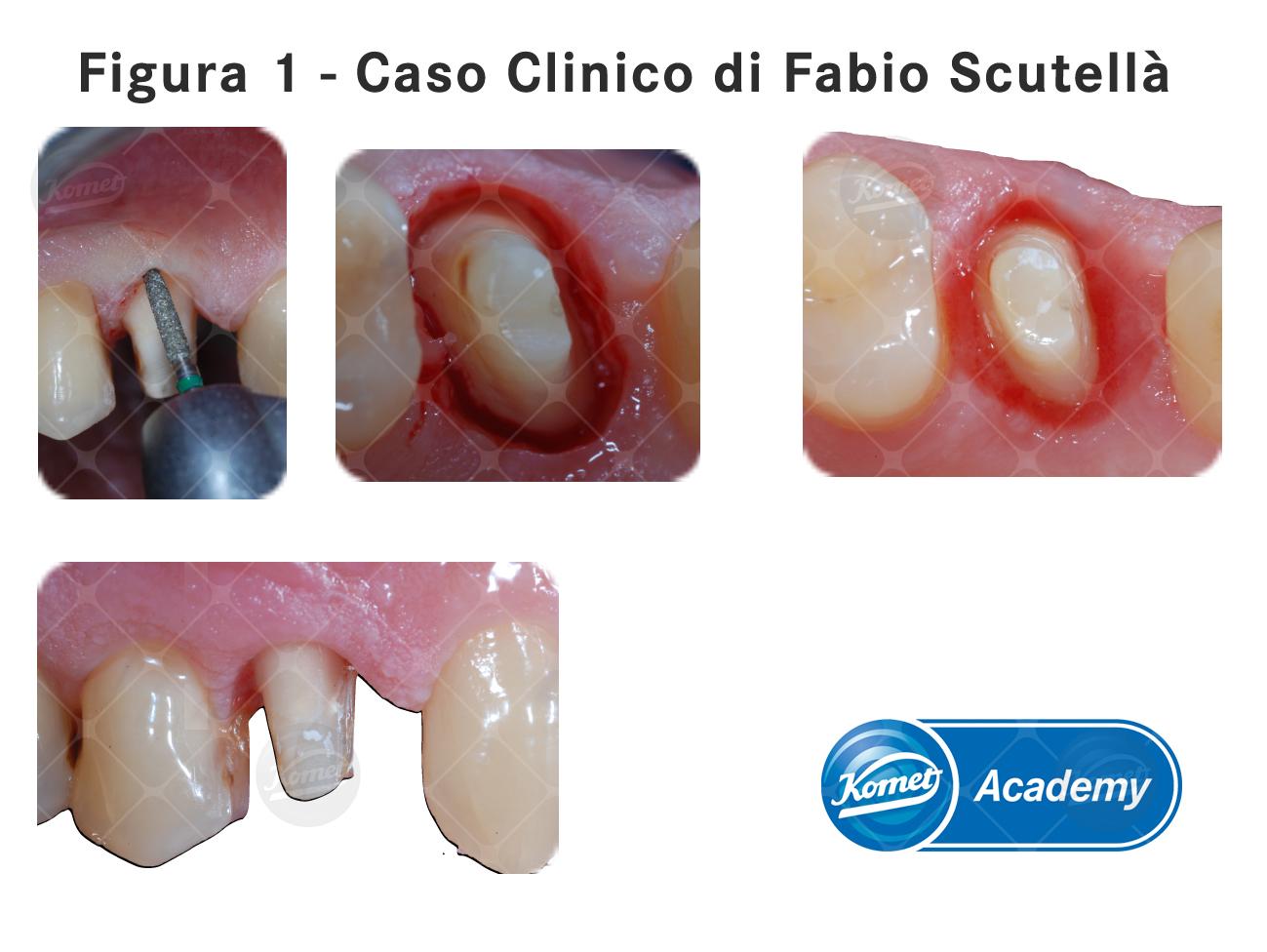 Fig1 caso clinico Scutellà