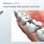 • Non ledere i denti prossimali ricorrendo alle punte soniche SFM7