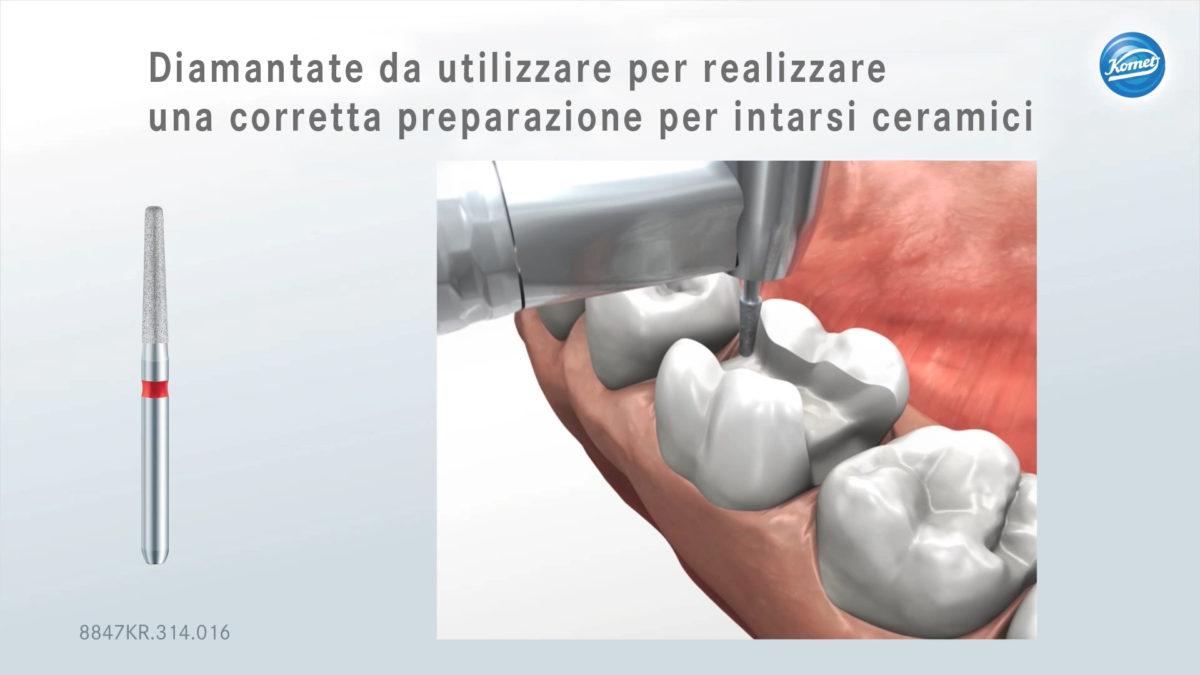 Sequenza di strumenti Komet da utilizzare per realizzare una corretta preparazione per intarsi ceramici:
