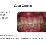 DrDeiedda caso endodontico pag1