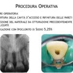 DrDeiedda caso endodontico pag2