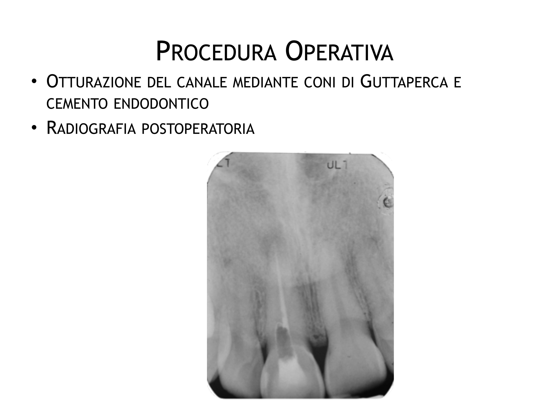 DrDeiedda caso endodontico pag6