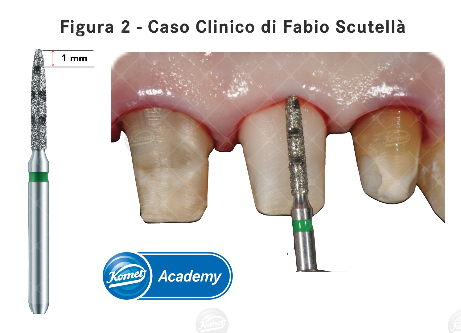 Fig.2 caso clinico Scutellà
