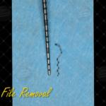 8 Broken file removal Endo & Resto by Alessandro Fava