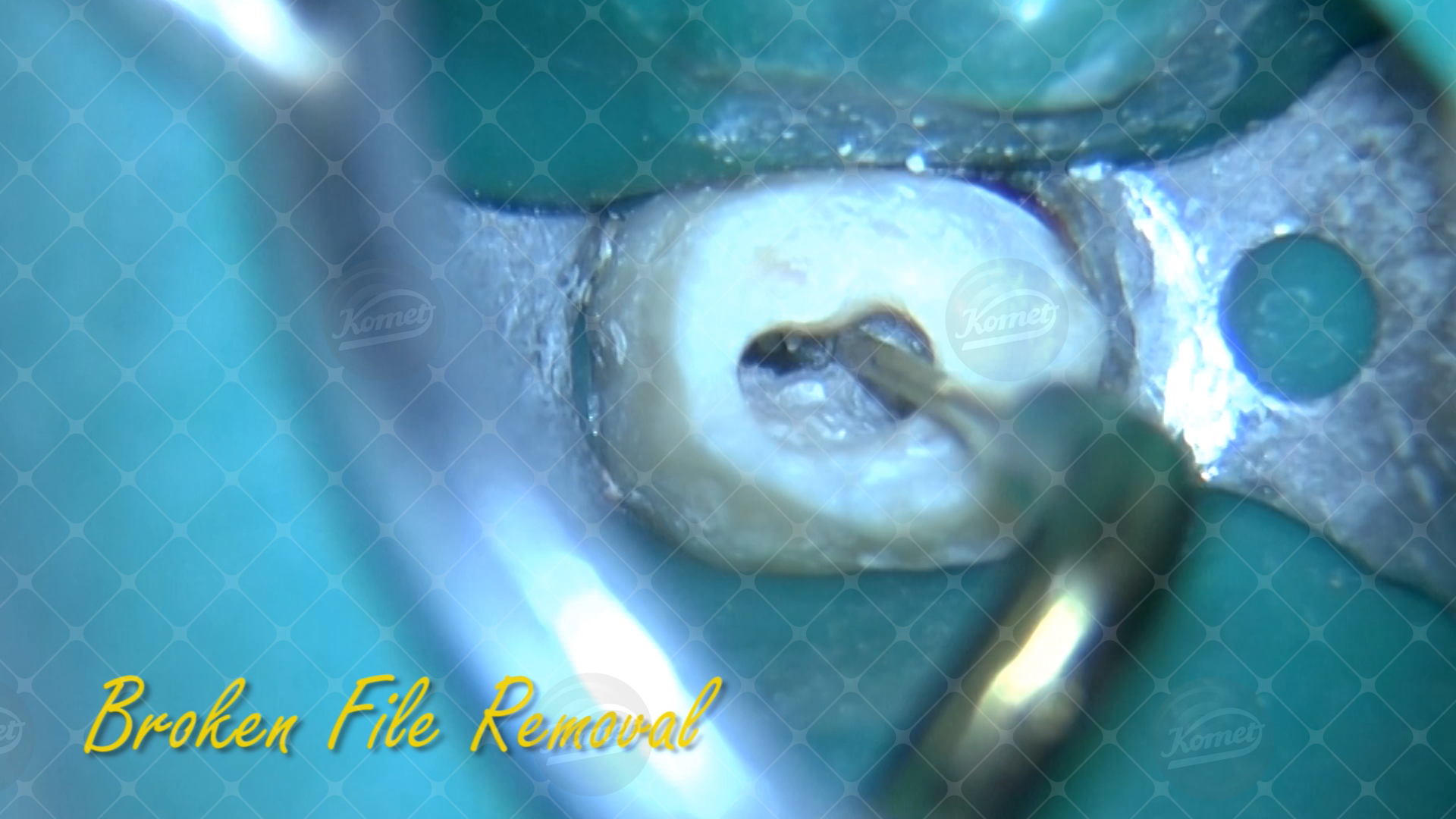 4 Broken file removal Endo & Resto by Alessandro Fava