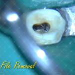 5 Broken file removal Endo & Resto by Alessandro Fava