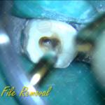 6 Broken file removal Endo & Resto by Alessandro Fava