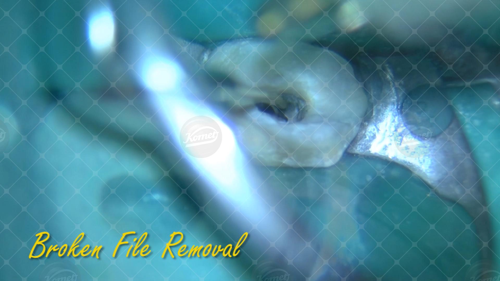 7 Broken file removal Endo & Resto by Alessandro Fava