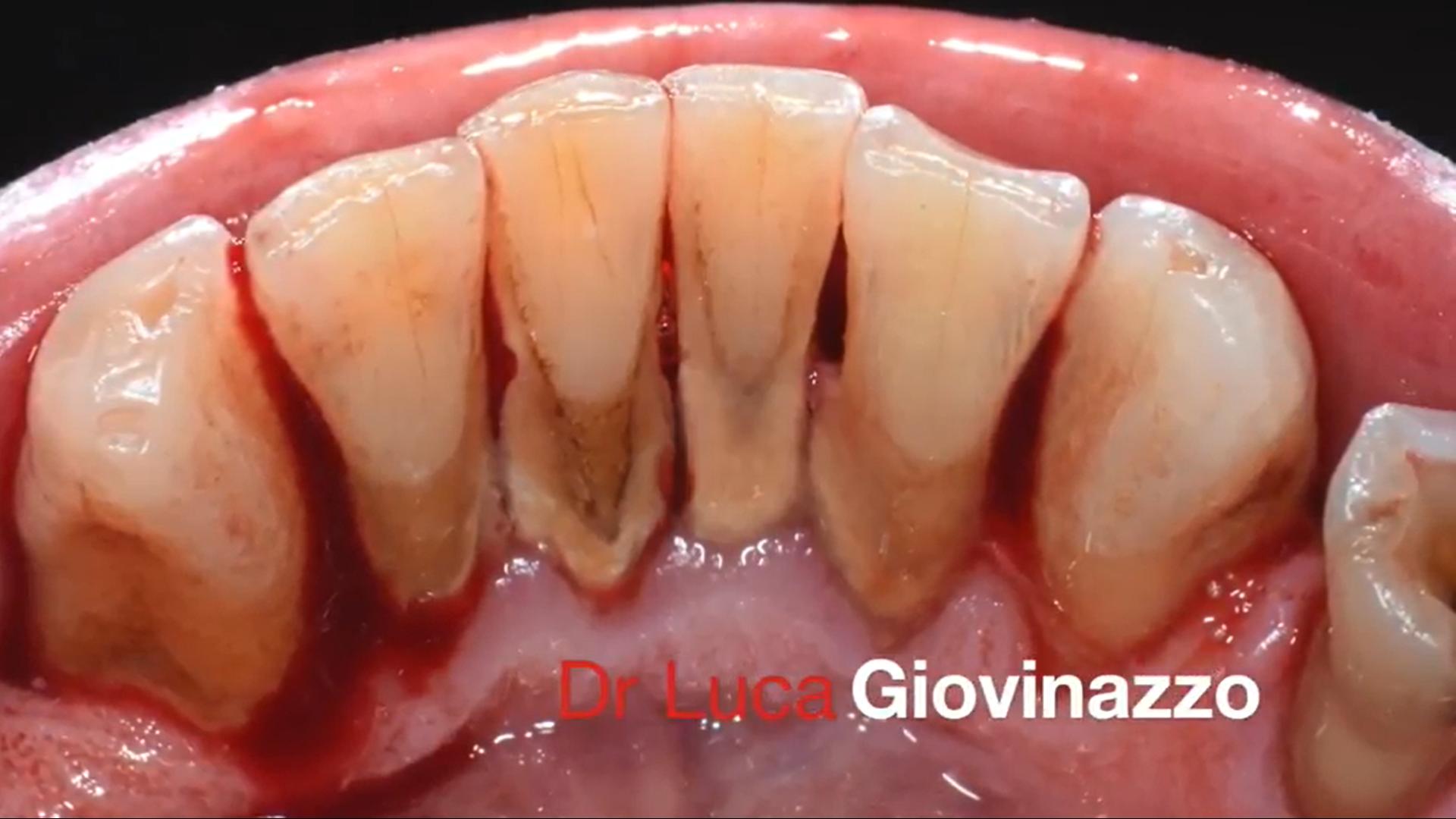 Caso clinico del Dr Luca Giovinazzo