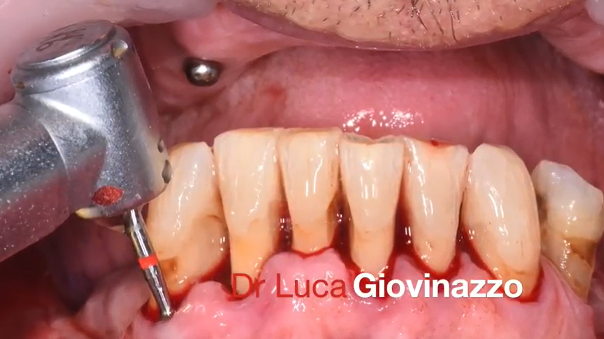 Dr Luca Giovinazzo (3)