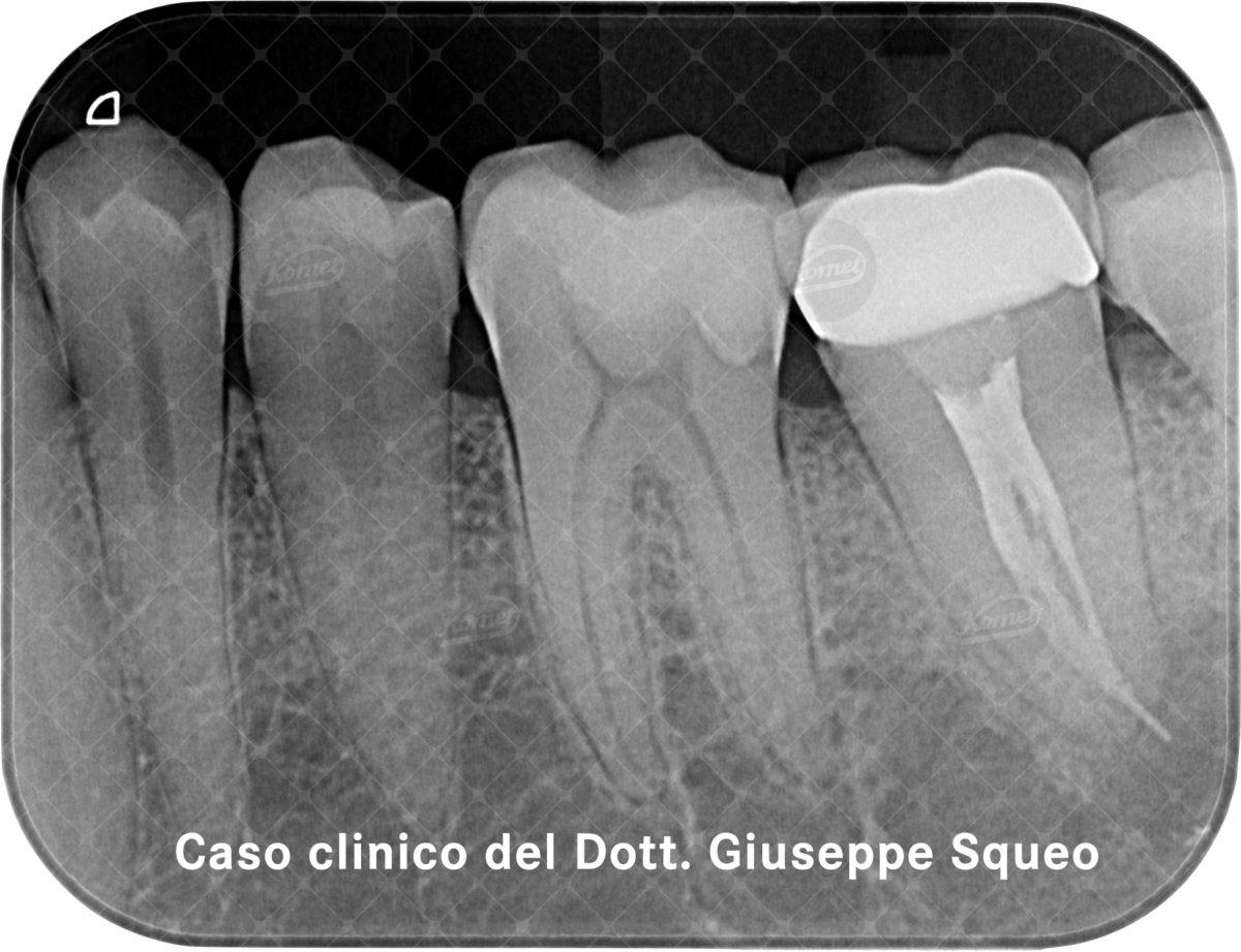 Caso clinico del Dr Giuseppe Squeo