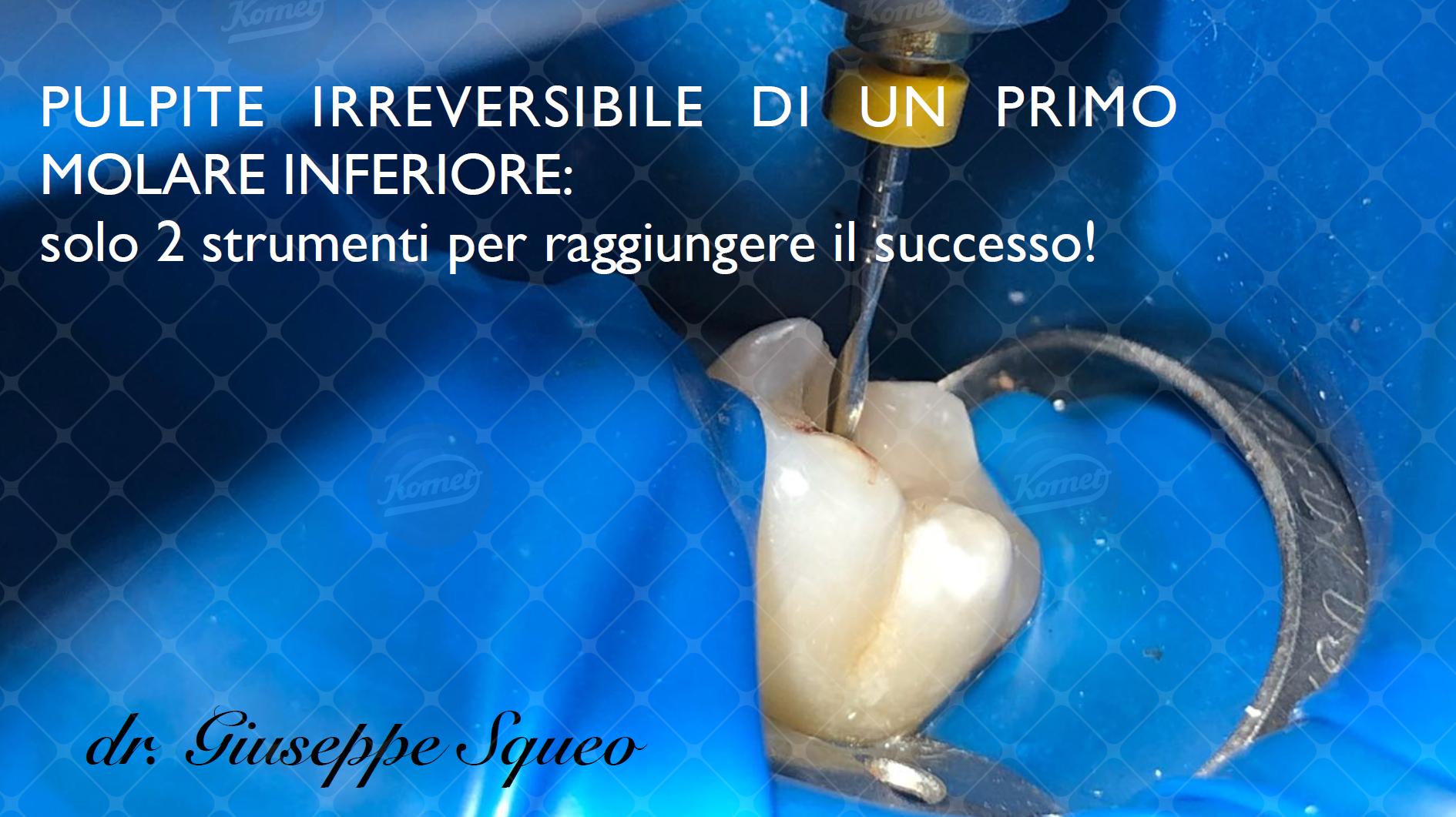 DrSqueo trattamento pulpite irreversibile (1)