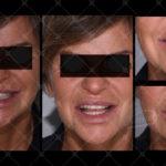 Fig. 11 Mock-up sulla base della ceratura eseguita, foto intra-orali/extra-orali, e particolare delle mascherine in silicone rigido impiegate per stampare in cavità orale il mock-up.