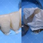 """Fig. 14 Fasi della cementazione adesiva dei restauri provvisori """"PREP-LESS"""" in composito alla nuova DVO."""