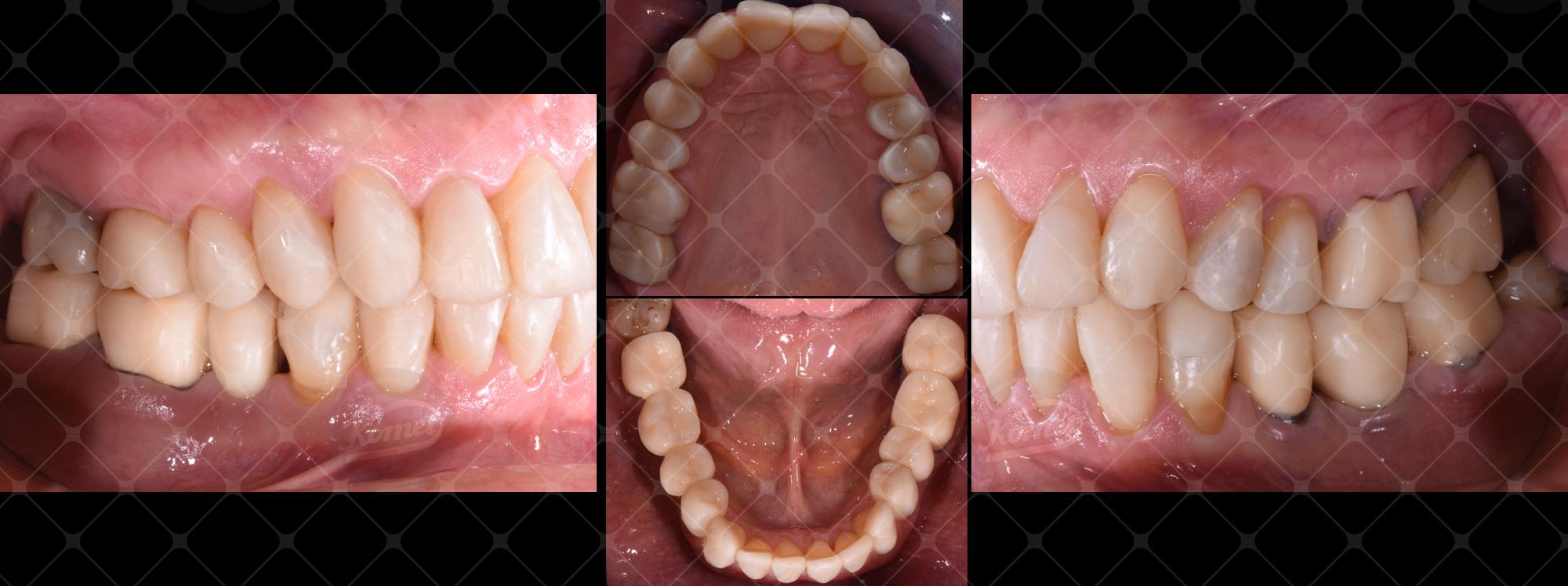 Fig. 16 Arcate riabilitate provvisoriamente in visione occlusale e laterale.