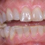 Fig. 2 Il caso iniziale, sorriso frontale a denti chiusi e leggermente aperti.