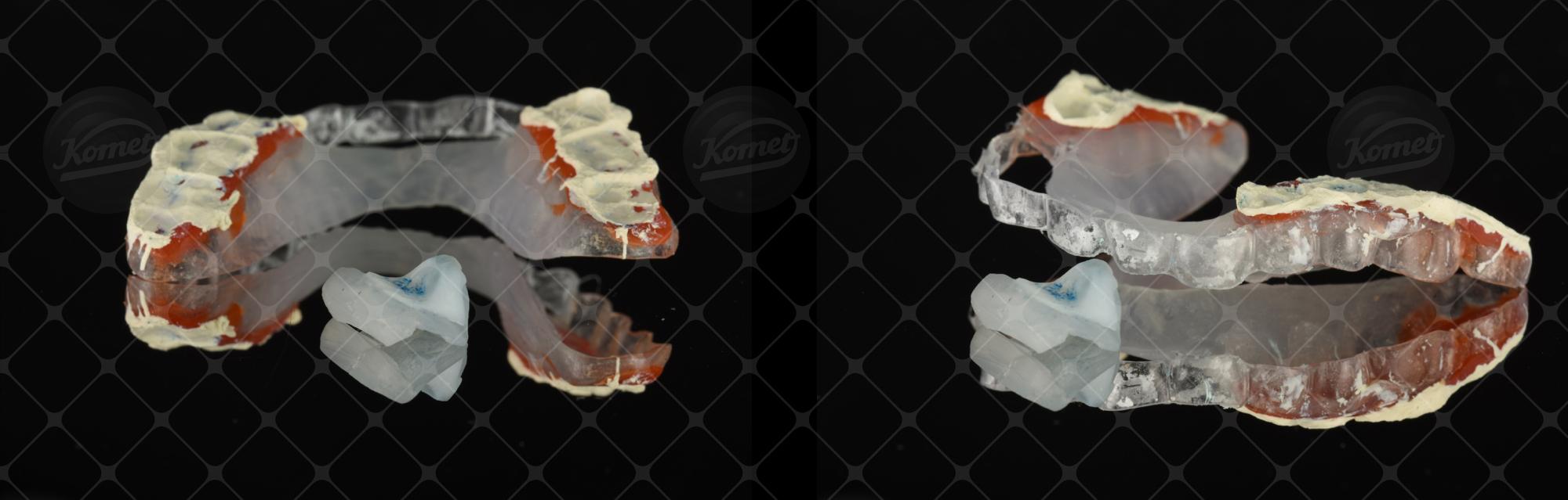 Fig. 4 Utilizzo di una pasta all'ossido di zinco-eugenolo per ribasare il dispositivo di rialzo posteriore.