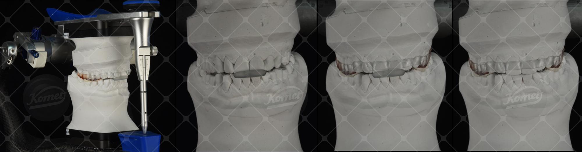 Fig. 5 I 2 dispositivi di rialzo della DVO vengono impiegati in laboratorio per separare i modelli delle 2 arcate dentarie.
