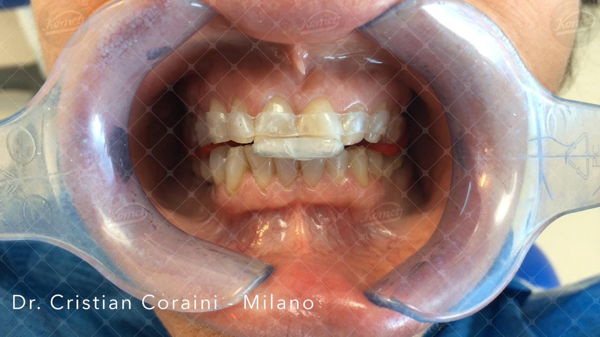 Fig. 7 Rappresentazione di quanto indagato in fase preliminare allo scopo di incrementare la DVO iniziale: la paziente può avere una certa libertà di movimento mandibolare.