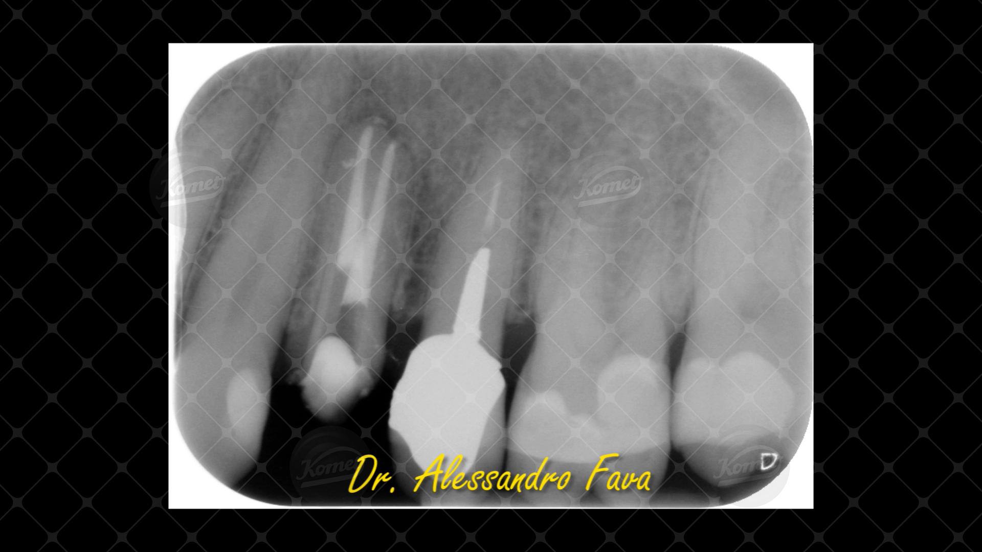 Caso 24 del Dr Alessandro Fava (16)