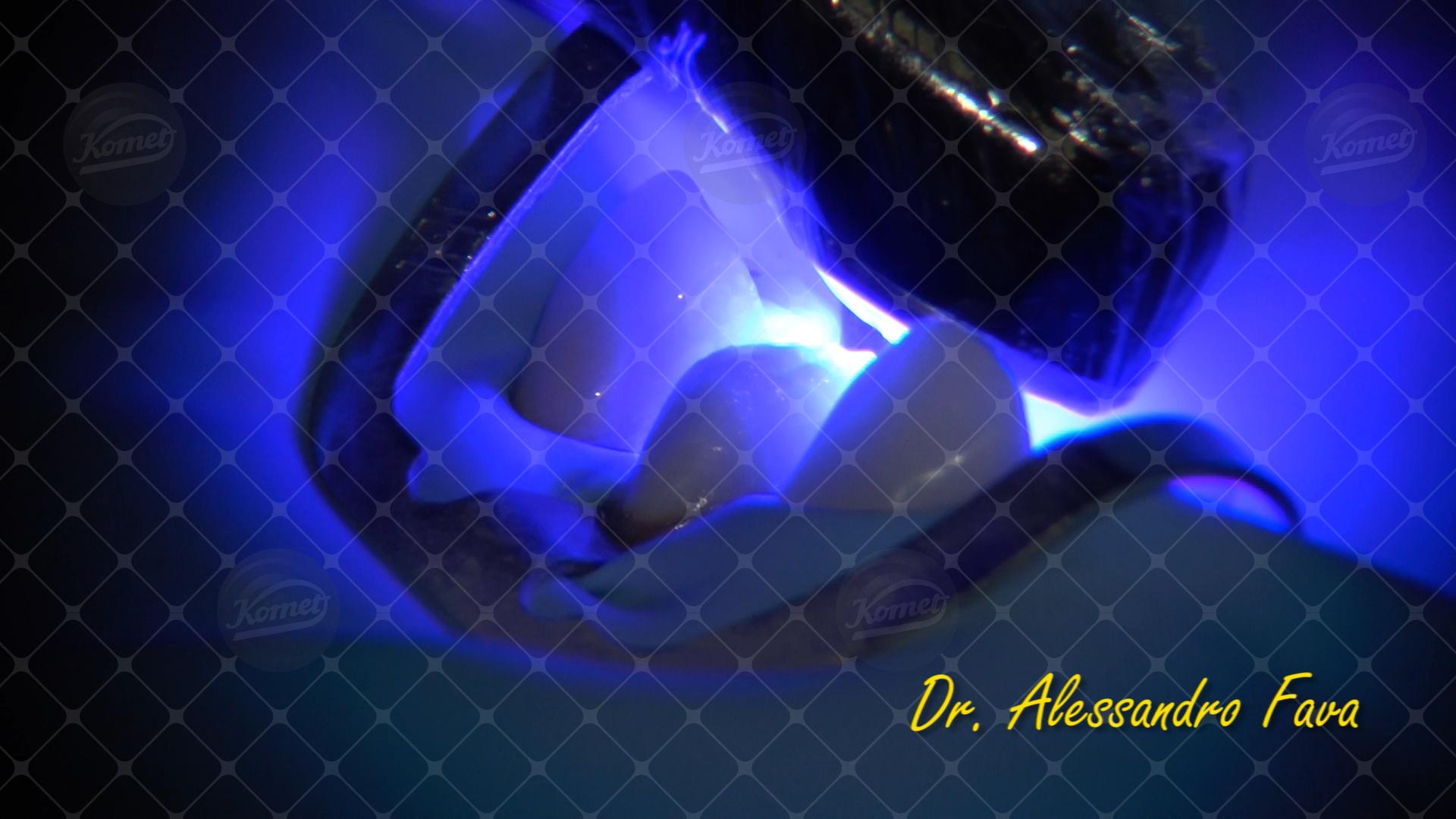 Caso 24 del Dr Alessandro Fava (40)