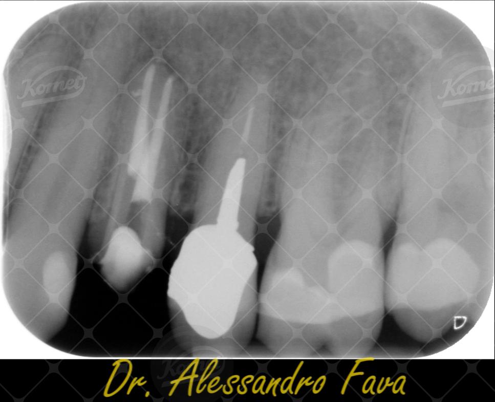 Caso clinico del Dr Alessandro Fava