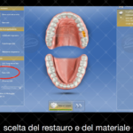 Inlay in composito con sistematica CAD CAM by Dr Claudio De Vito (0)