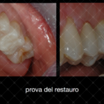 Inlay in composito con sistematica CAD CAM by Dr Claudio De Vito (4)