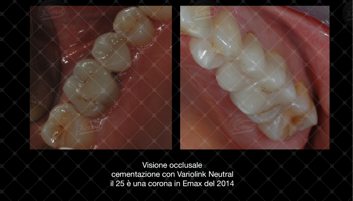 Inlay in composito con sistematica CAD CAM by Dr Claudio De Vito