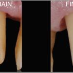 Simplified Prosthetic Protocol by Dr Fabio Scutellà (11)