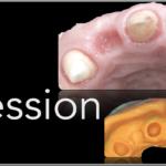 Simplified Prosthetic Protocol by Dr Fabio Scutellà (17)