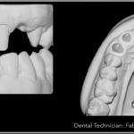 Simplified Prosthetic Protocol by Dr Fabio Scutellà (18)