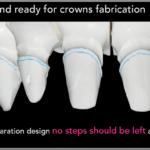 Simplified Prosthetic Protocol by Dr Fabio Scutellà (19)