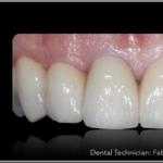 Simplified Prosthetic Protocol by Dr Fabio Scutellà (21)