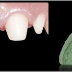 Simplified Prosthetic Protocol by Dr Fabio Scutellà (22)