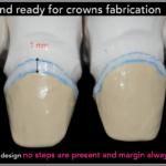 Simplified Prosthetic Protocol by Dr Fabio Scutellà (24)