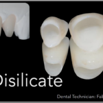 Simplified Prosthetic Protocol by Dr Fabio Scutellà (25)