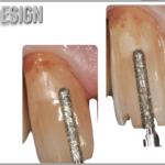Simplified Prosthetic Protocol by Dr Fabio Scutellà (7)
