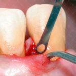 Immagini cliniche Dr Salvatore Batia (2)