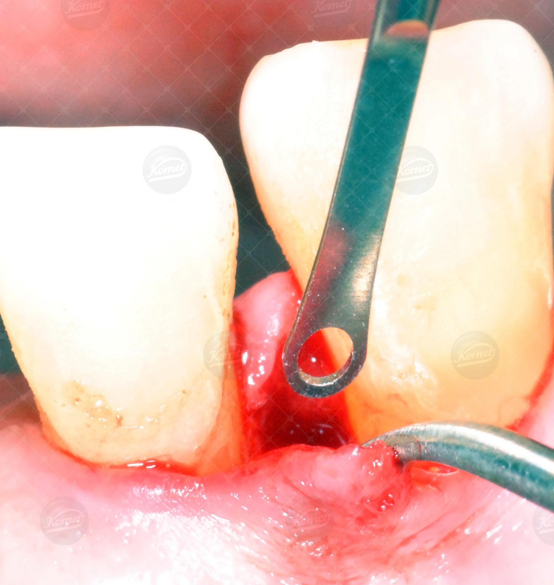 Immagini cliniche Dr Salvatore Batia (11)