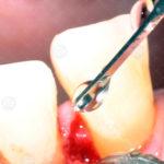 Immagini cliniche Dr Salvatore Batia (3)