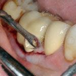 Immagini cliniche Dr Salvatore Batia (5)