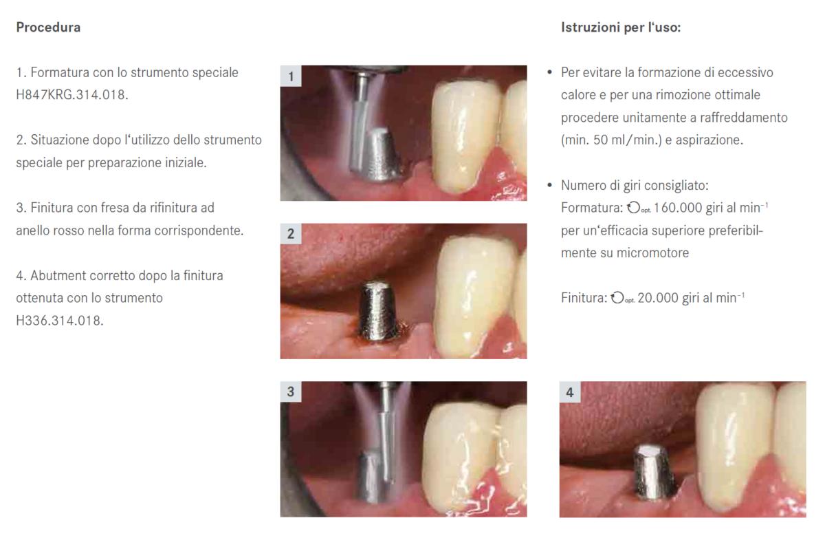 rese CT serie G per abutment in titanio (2)