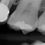 Vertical Slot Case Report by Dr Sammarco (2)