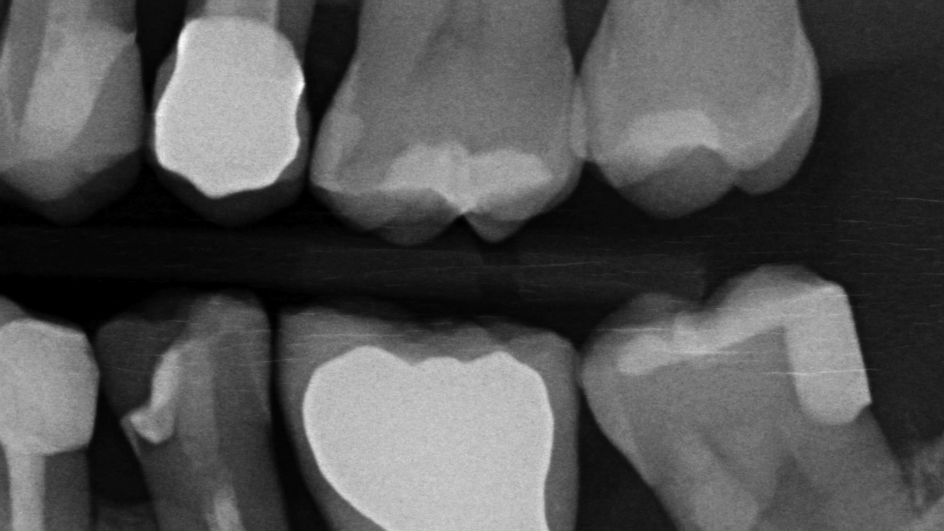 Vertical Slot Case Report by Dr Sammarco (46)