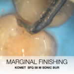 Vertical Slot Case Report by Dr Sammarco (9)