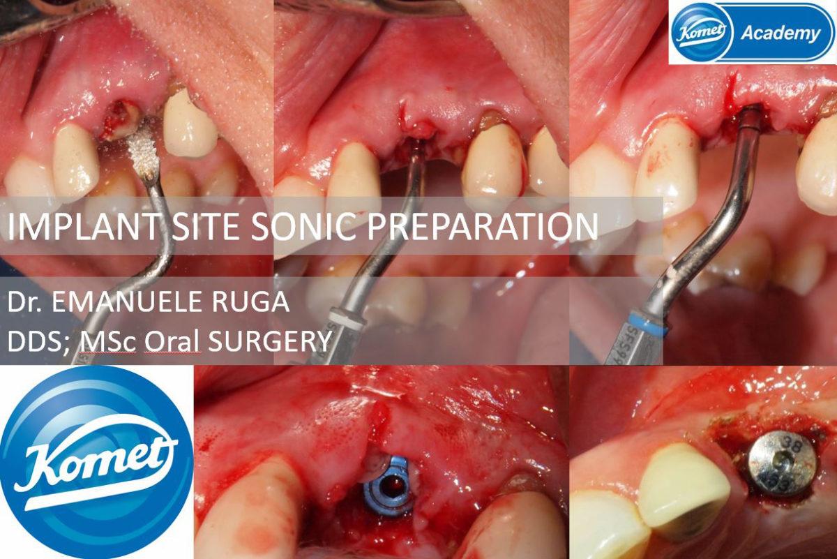 Caso clinico del Dr Emanuele Ruga