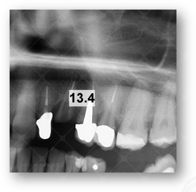 Case report Dr E Ruga (3)