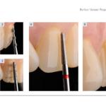 Procedura KIT 4686