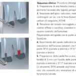 Punte soniche per endodonzia retrogada (1)